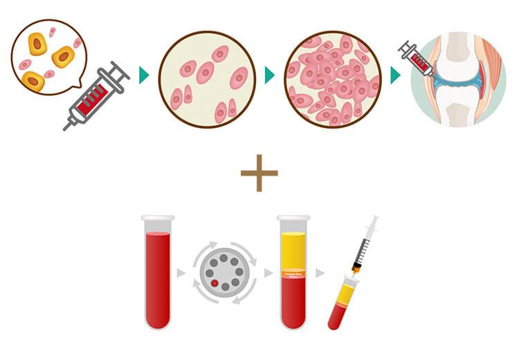 幹細胞治療+PRP治療